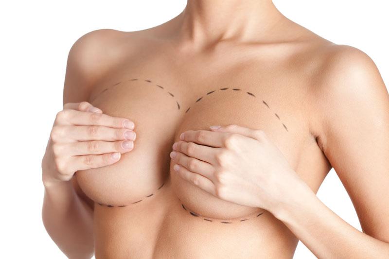 piersi - Chirurgia plastyczna