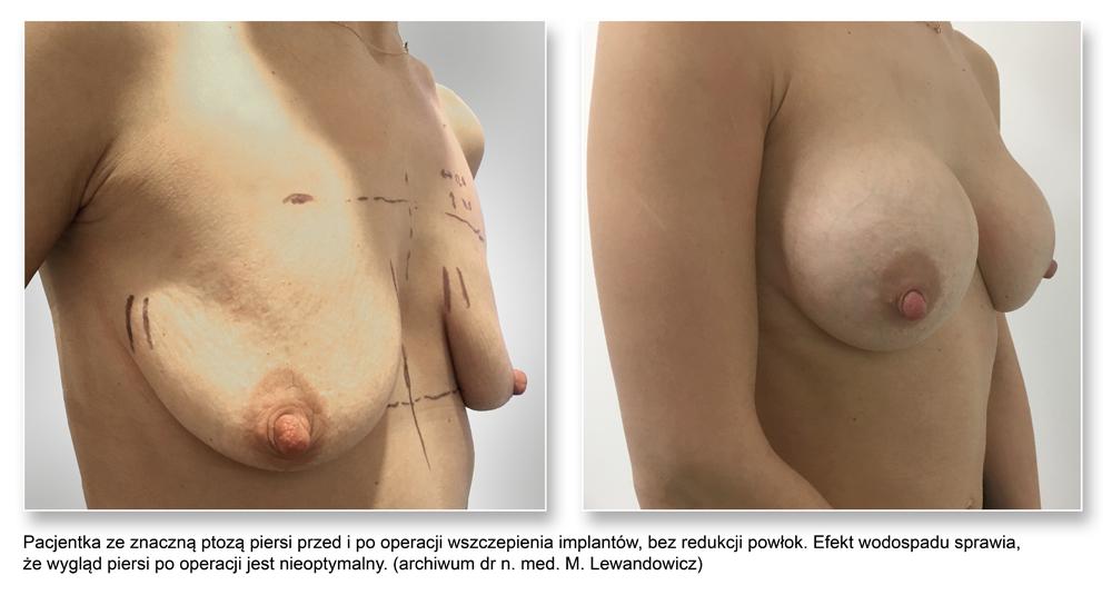 plas pier 01waterfall - Powiększanie piersi