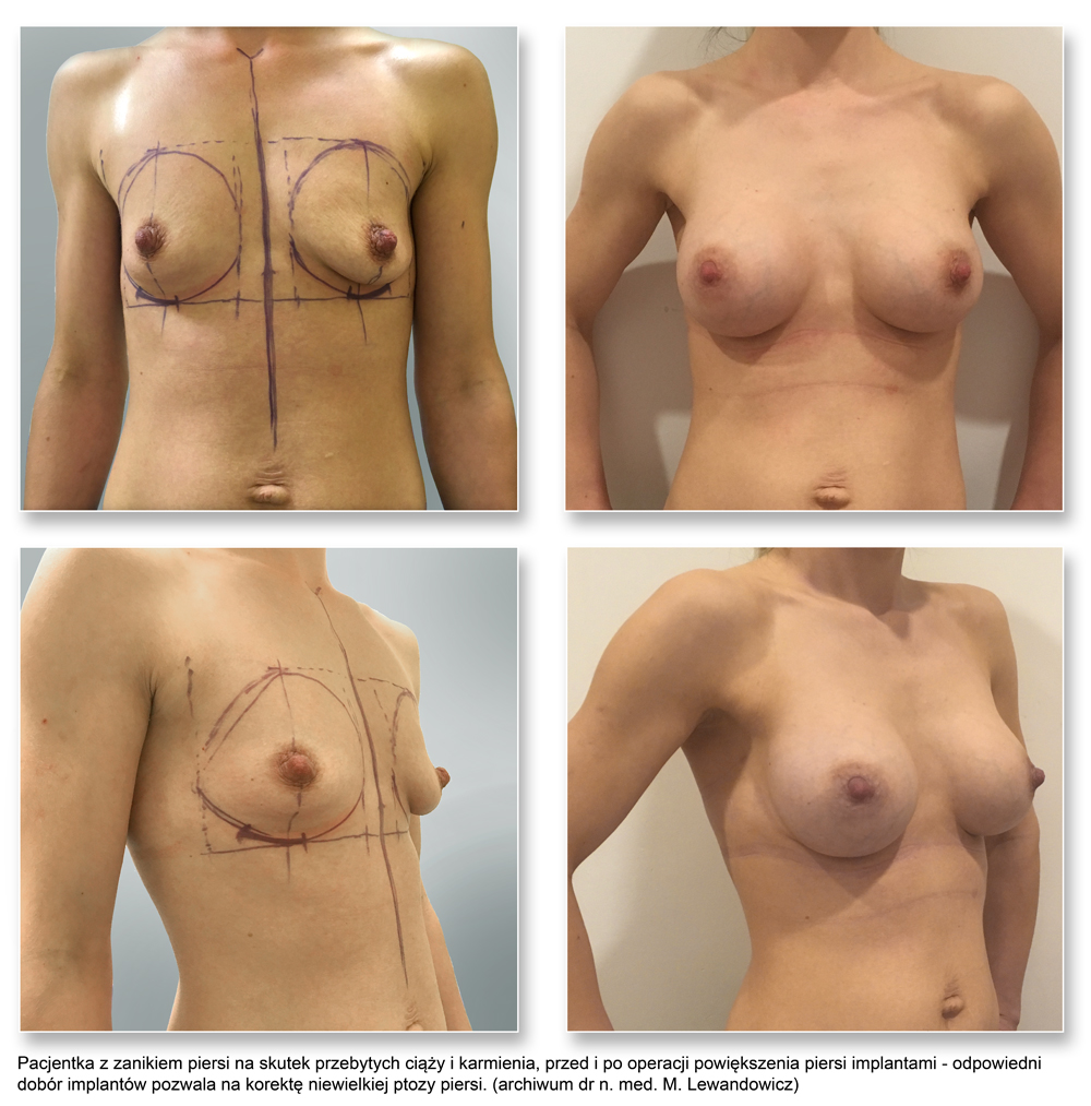 plas pier 04impl - Implanty