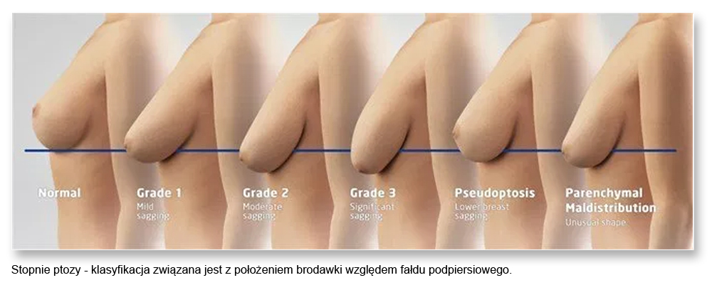 plas pier 09ptosisstaging - Podnoszenie piersi