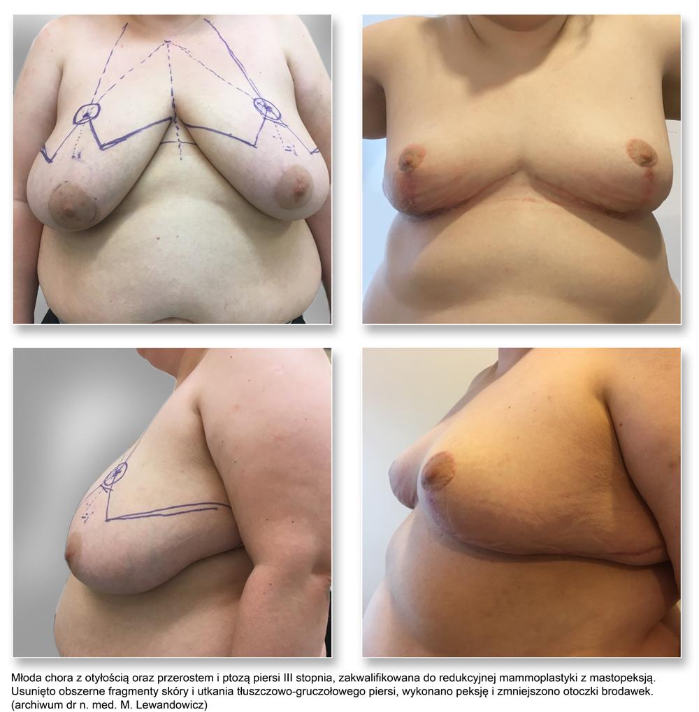 plas pier 10reduc - Redukcja piersi