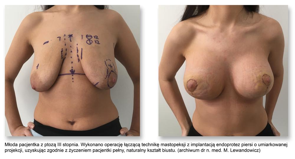 plas pier 11pex aug - Podnoszenie piersi