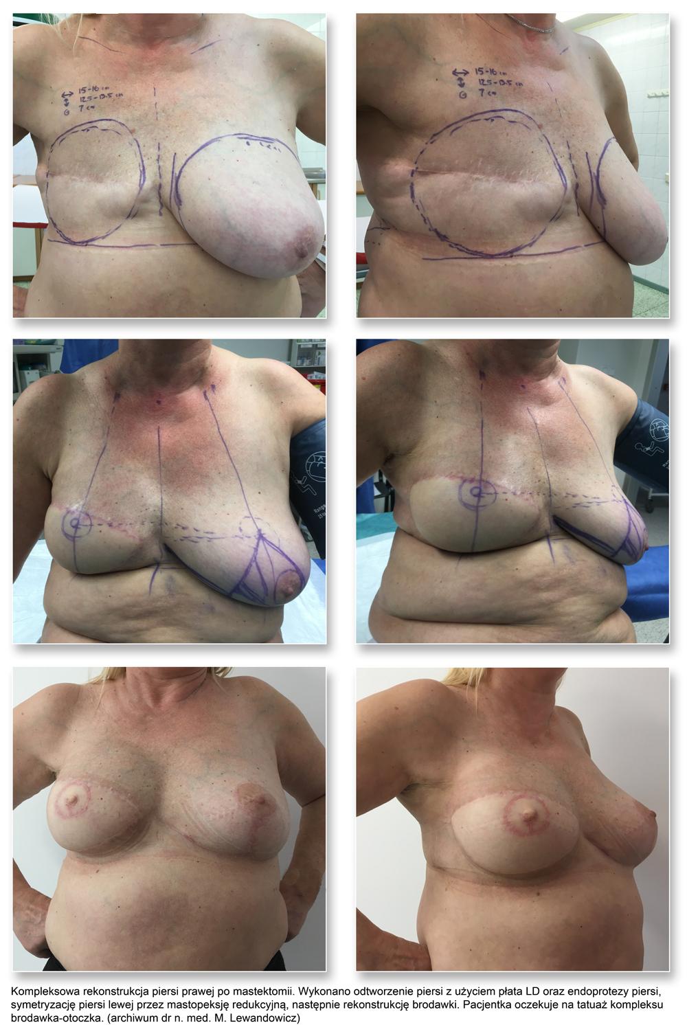 plas pier 12rec sym NAC - Rekonstrukcja piersi