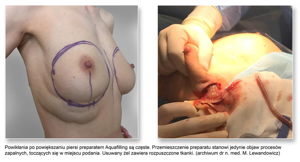 plas pier 15Aquafilling - Usuwanie preparatów wolumetrycznych piersi