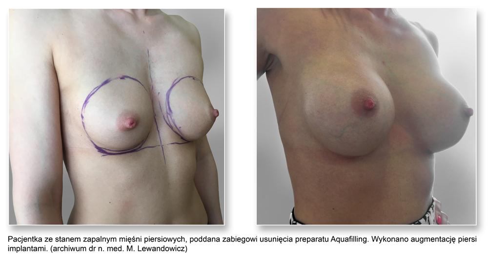 plas pier 16AquafillingImpl - Usuwanie preparatów wolumetrycznych piersi