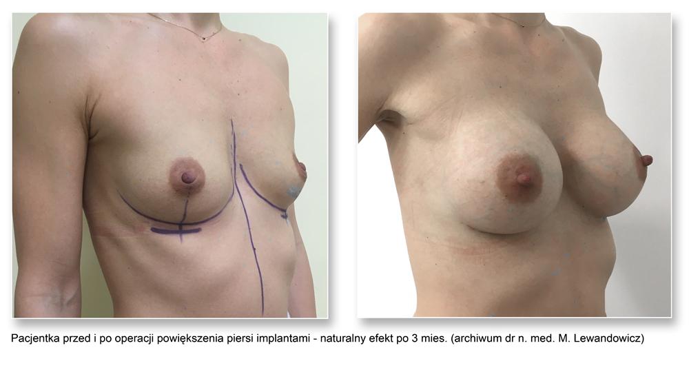 powiększanie piersi zdjęcie 1 - Powiększanie piersi